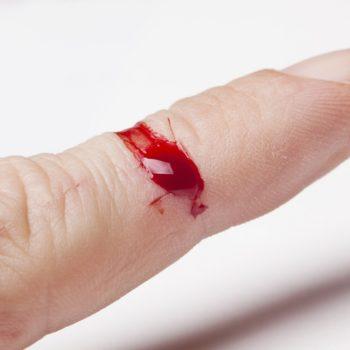 menghilangkan_noda-darah